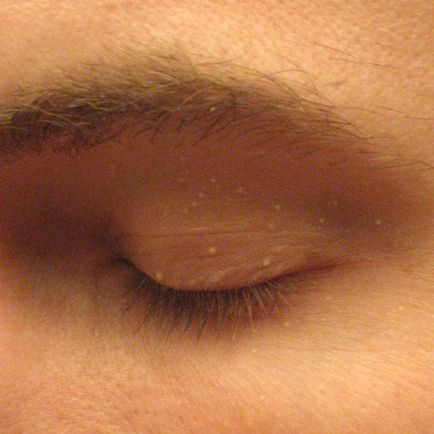 removal of papilloma on eyelid cpt code