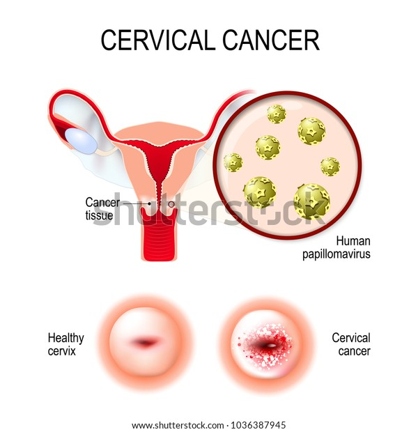 human papillomavirus causes cervical cancer