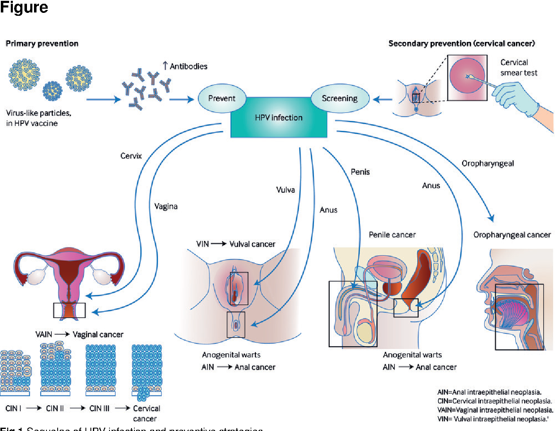 papillomavirus causes the cancer of the papiloma krema naruciti