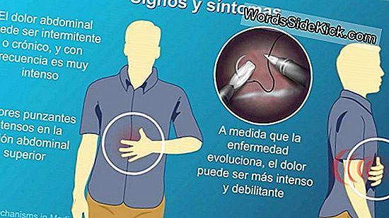 cancer de prostata em pessoas jovens papillomas of the larynx