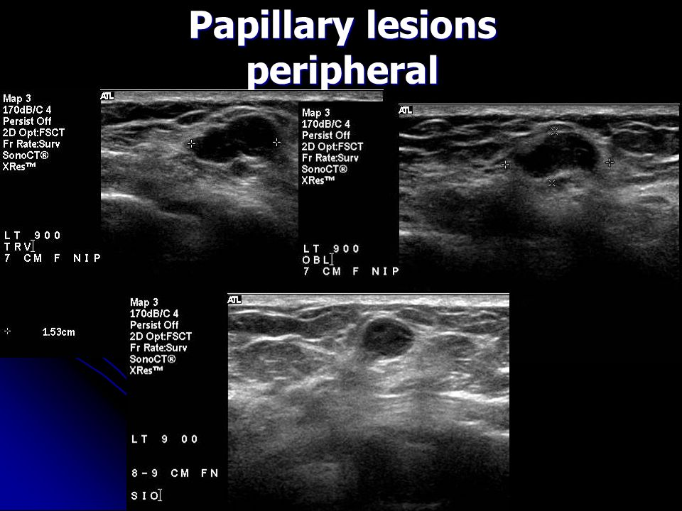 papilloma lesion in breast familial cancer definition genetics