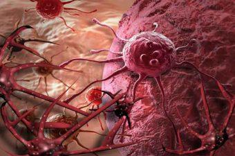 cancer epitelial sintomas metastatic cancer lymph nodes