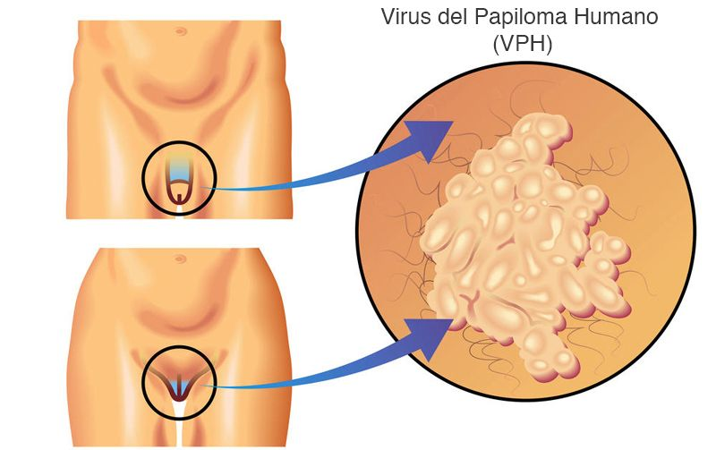 how to remove skin papilloma ovarian cancer x ray