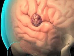 cancer cerebral definicion limbrici simptome