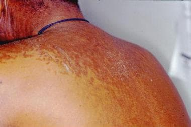 papillomatosis of the skin verme oxiurus pega