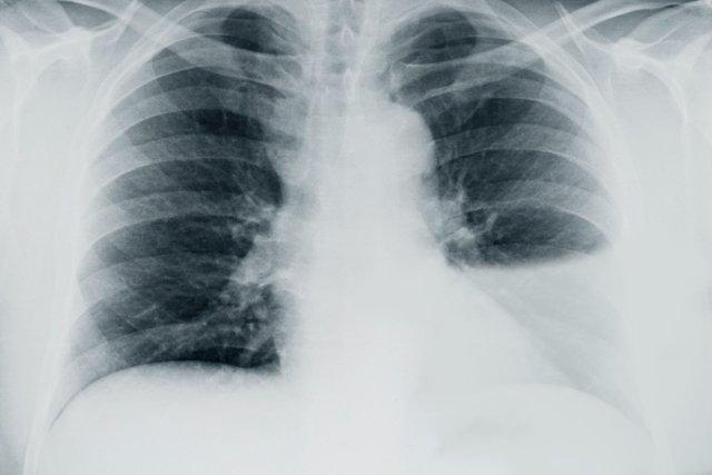 cancer pulmonar y derrame pleural human papillomavirus (hpv) especially strains 16 and 18