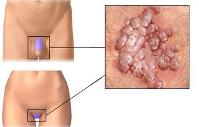 cervical cancer mri staging viermi carlig