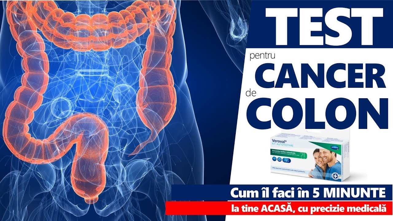 cancer de colon simptome incipiente
