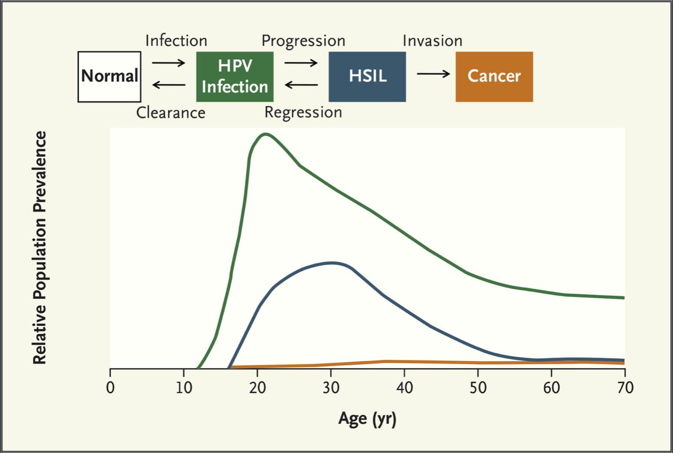 papilloma virus e tumore al cervello mst hpv chez lhomme