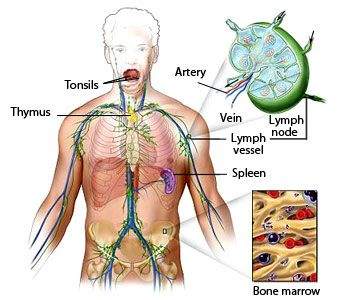cancer hodgkin linfatico papilloma vestibular adalah