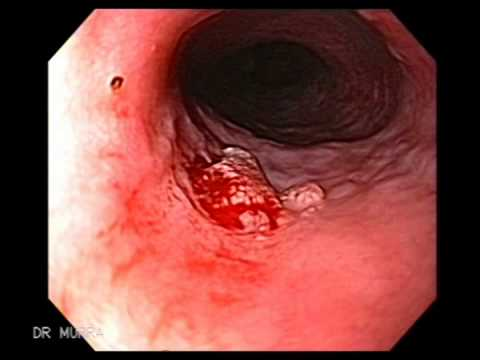 papilloma of esophagus viermi de mare