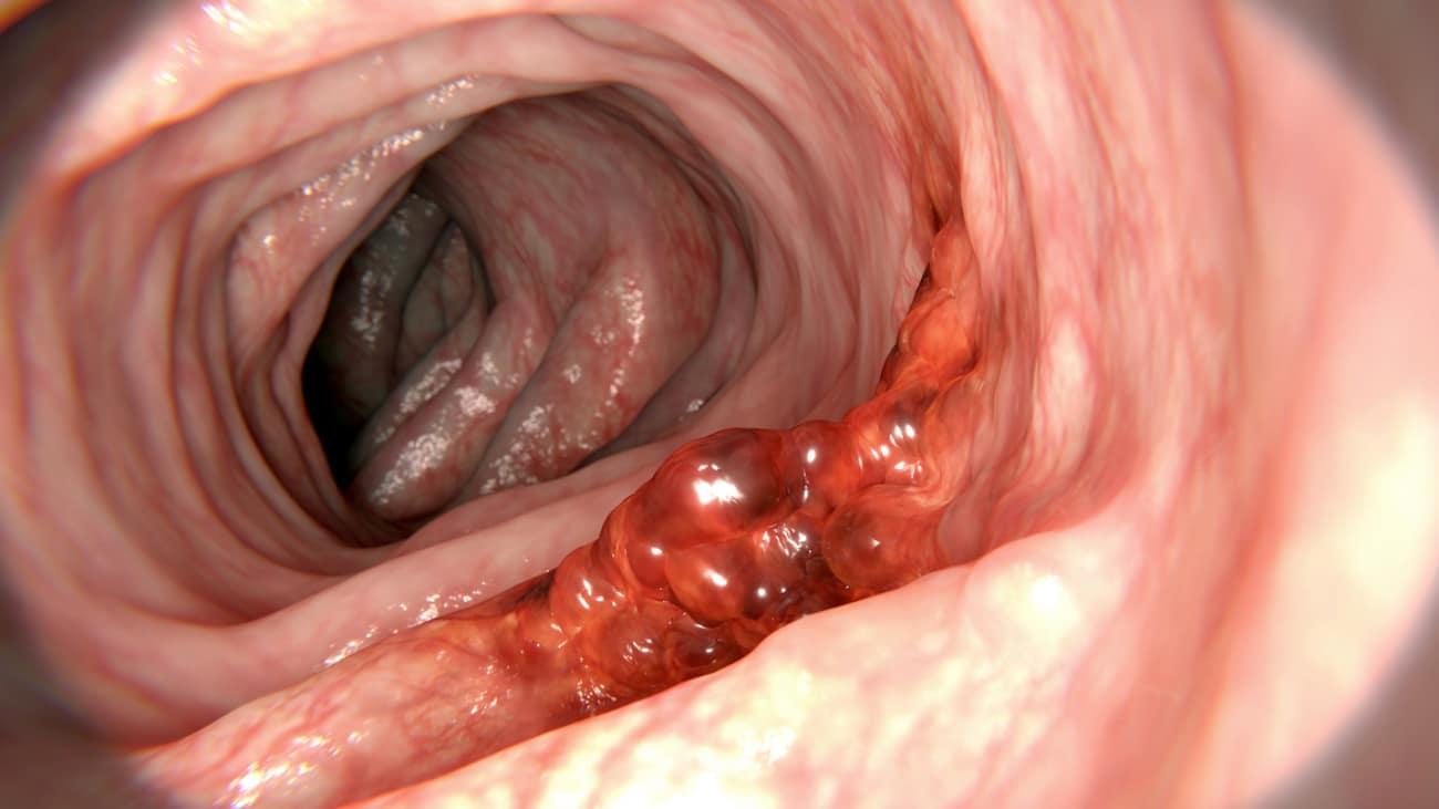hpv throat polyps oxiuros tiempo de incubacion