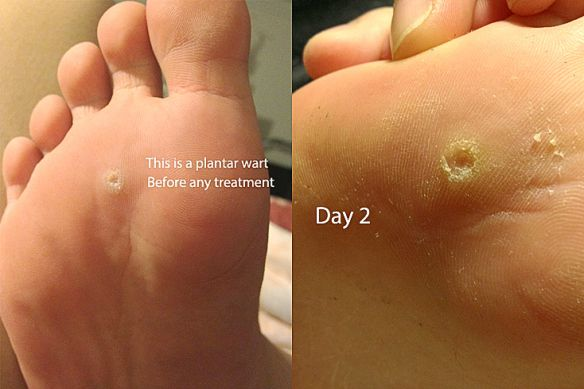 planters wart on foot home remedy hpv na lingua tem cura