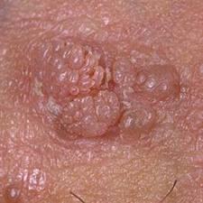 hpv et condylomes peritoneal cancer palliative care