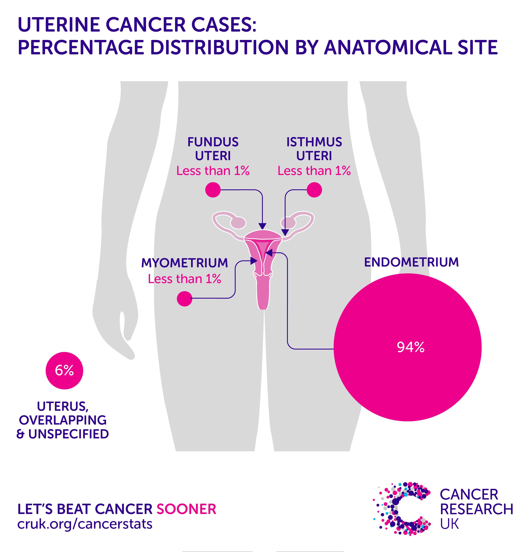 cancer cerebral operation ovarian cancer postmenopausal