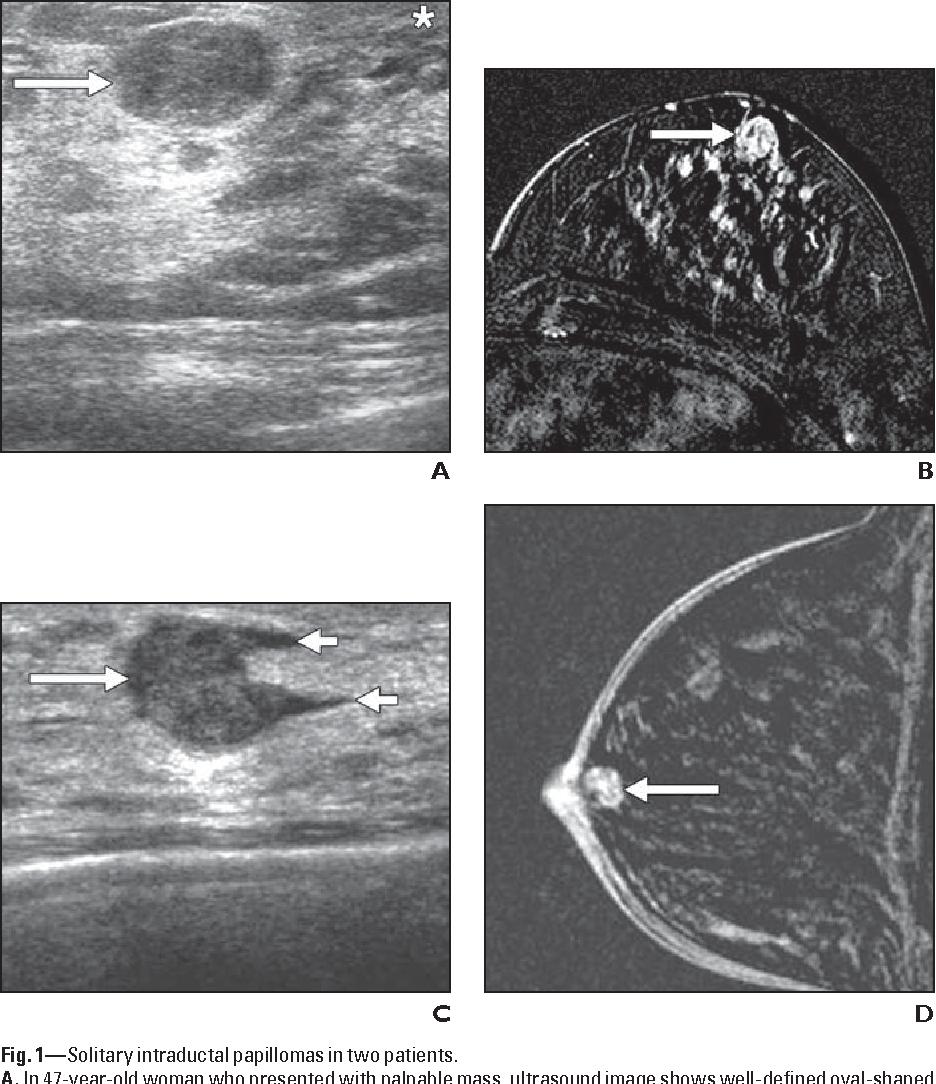 papilloma breast mri virus del papiloma humano caracteristicas del virus