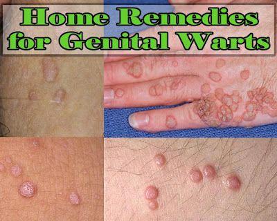 human papilloma virus pada wanita