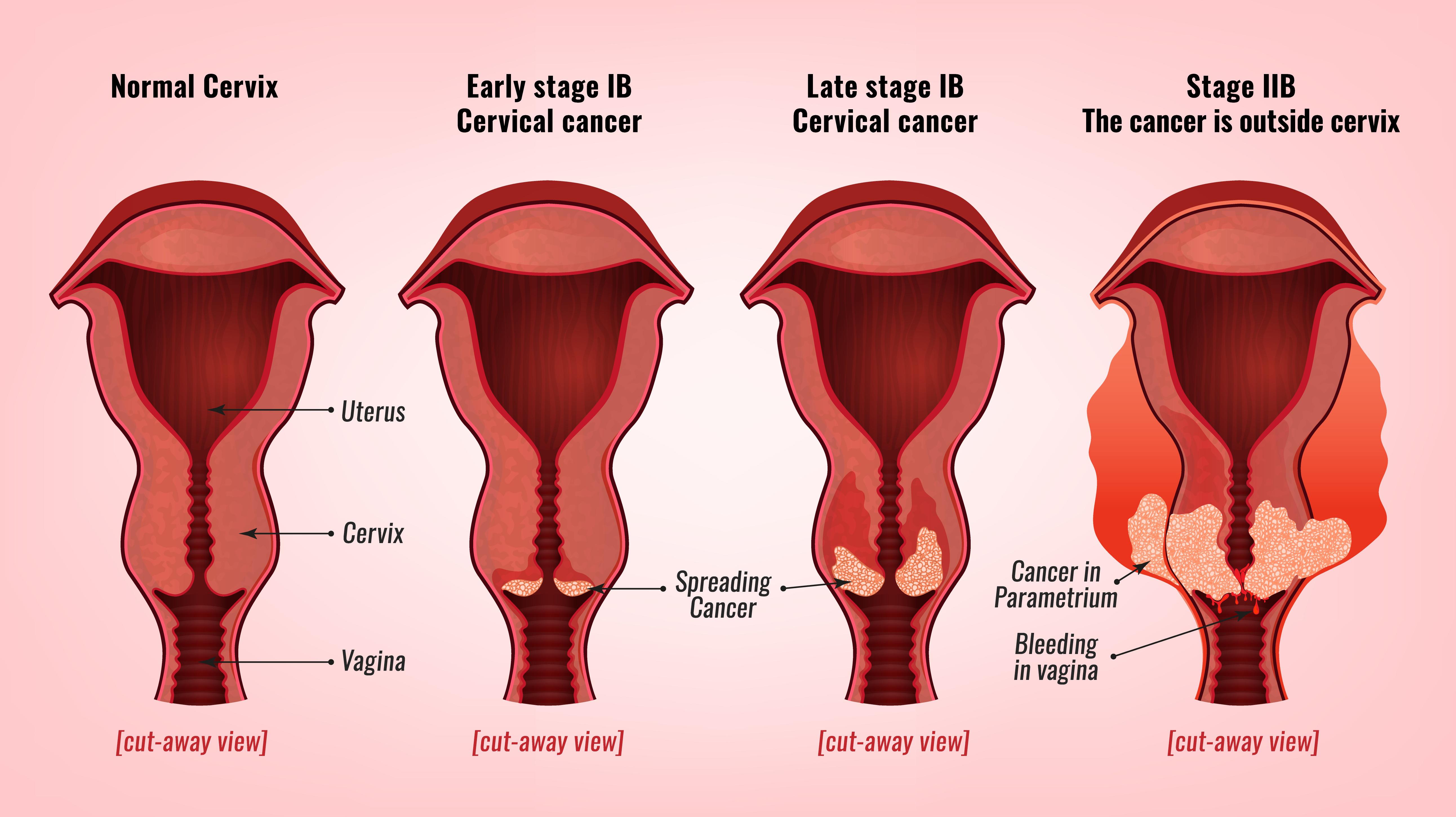 papilloma al seno sintomi plasturi detoxifiere farmacii