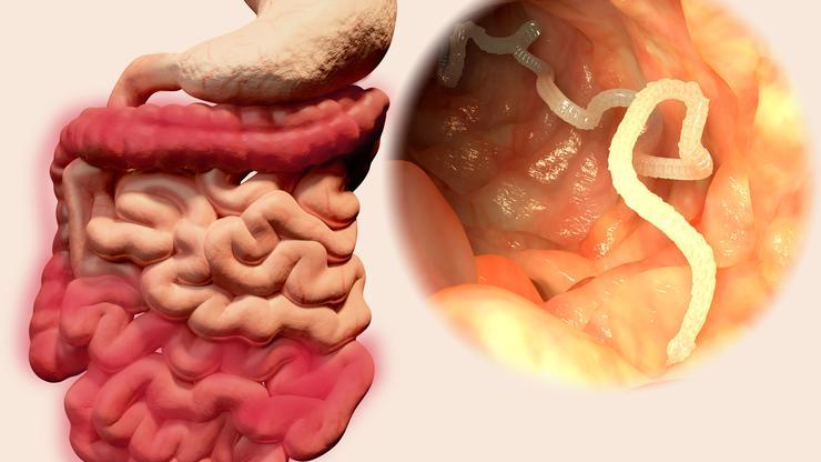 Fibrom – uzroci, simptomi i liječenje | Bolesti - Kreni zdravo!