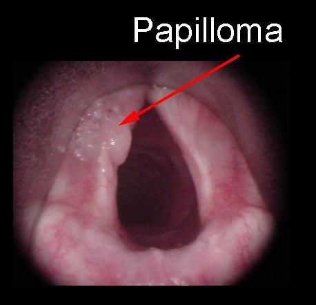 vestibular papillomatosis definition