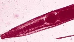 enterobius vermicularis wirt