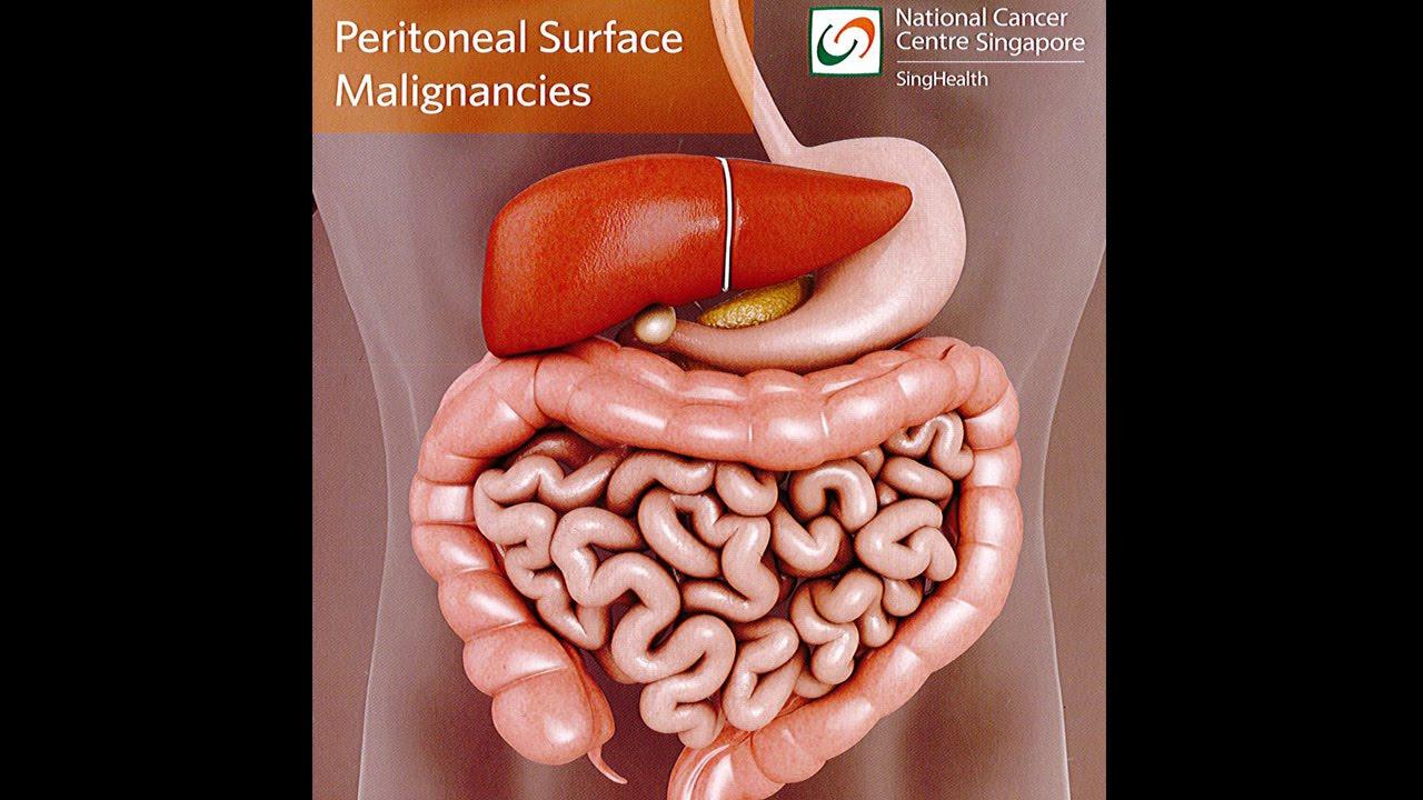 cancer peritoneal avanzado sintomas virus del papiloma humano en japon