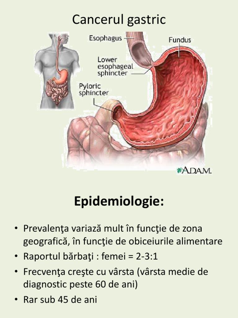 cancer mamar invaziv nst