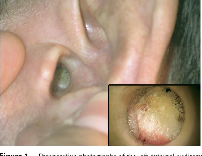 papilloma of ear canal
