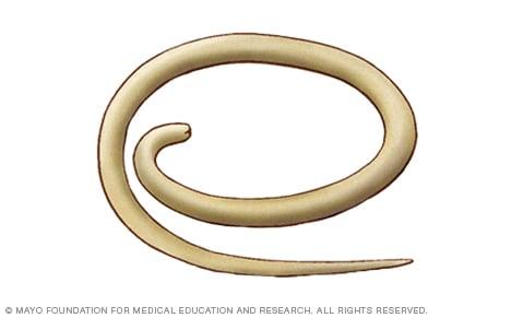 lombriz intestinal oxiuros