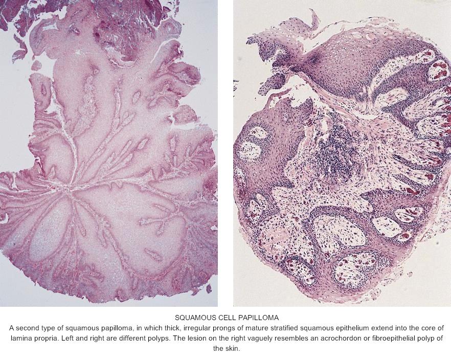 squamous papilloma histopathology cancer la plamani stadiul 4
