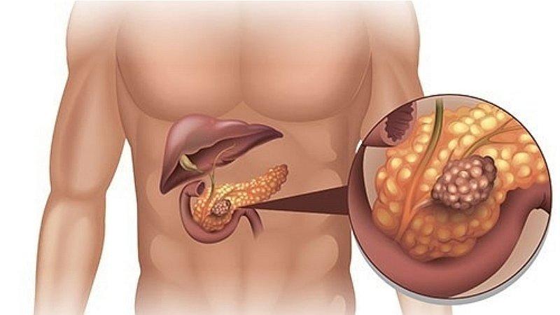 cancer de pancreas que lo causa