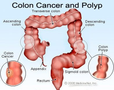 intestinal cancer bloating