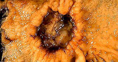 cancerul in japonia papiloma de celulas escamosas na boca