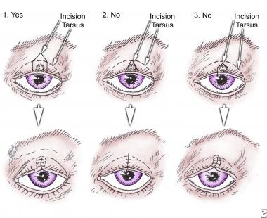 papilloma excision eyelid cpt code