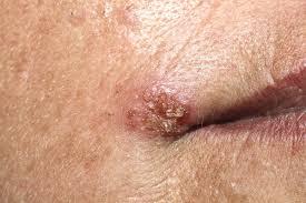 papiloma humano sintomas en hombres