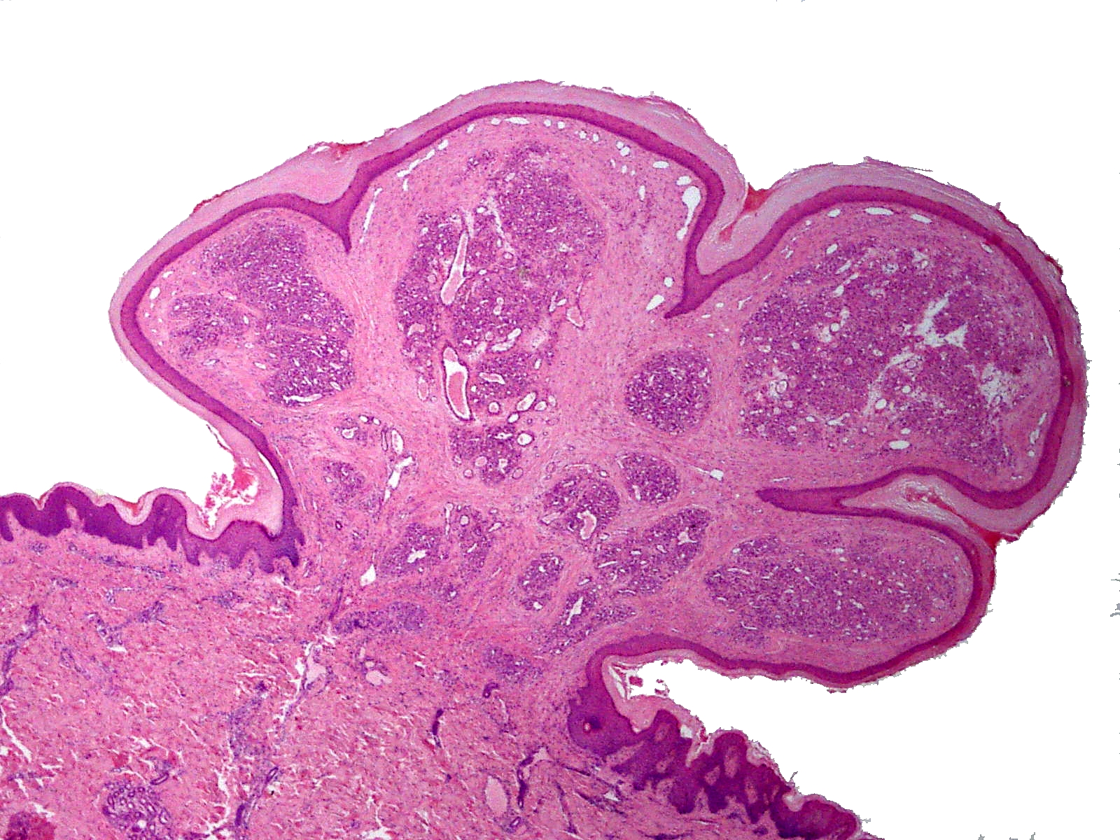 que es virus del papiloma y tratamiento papilloma invertito vescicale