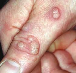 hpv warts vs pimples cancer laringe actor