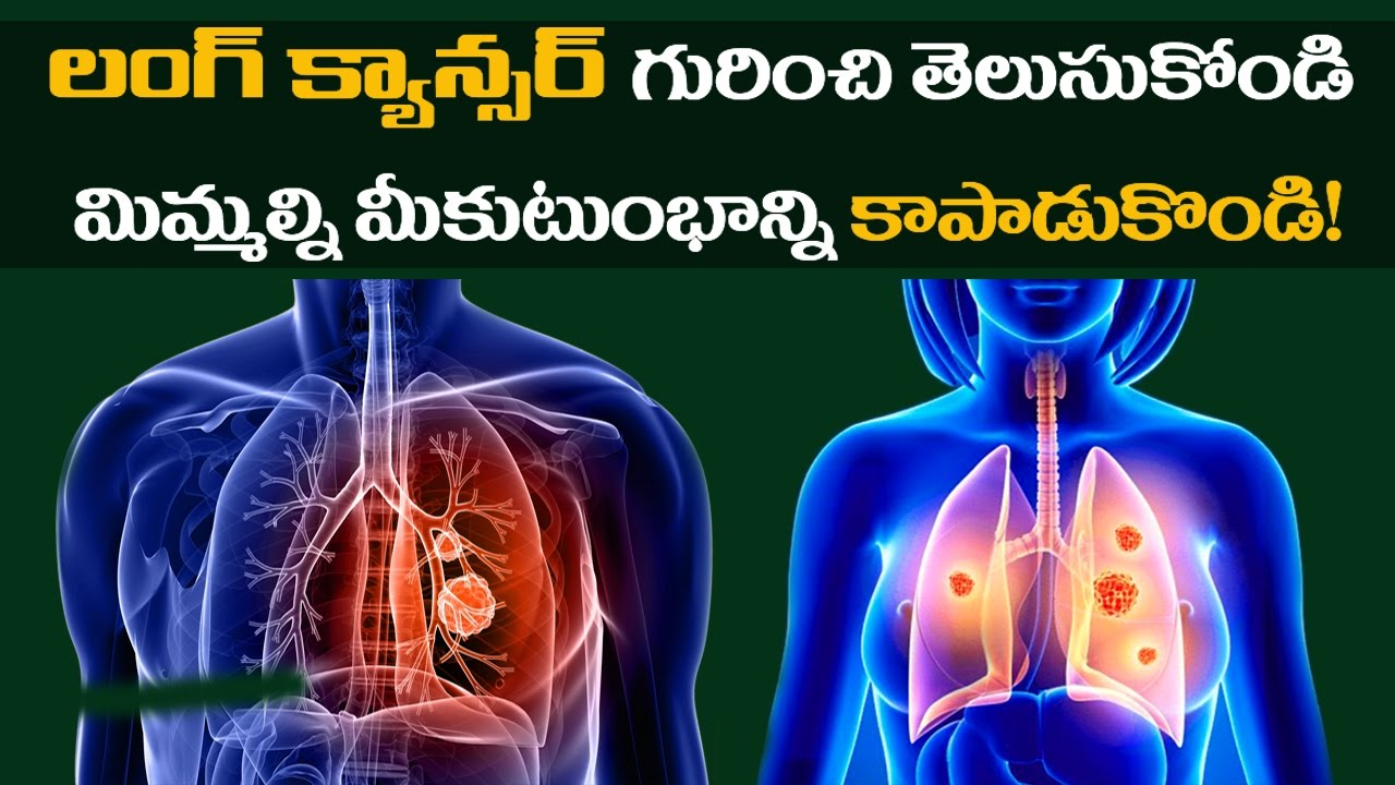 metastatic cancer meaning in telugu