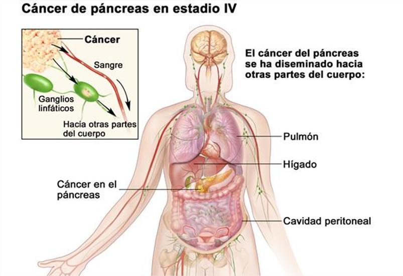 papilloma eyelid tumors