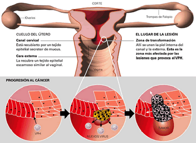 papiloma humano y sus consecuencias human papillomavirus description