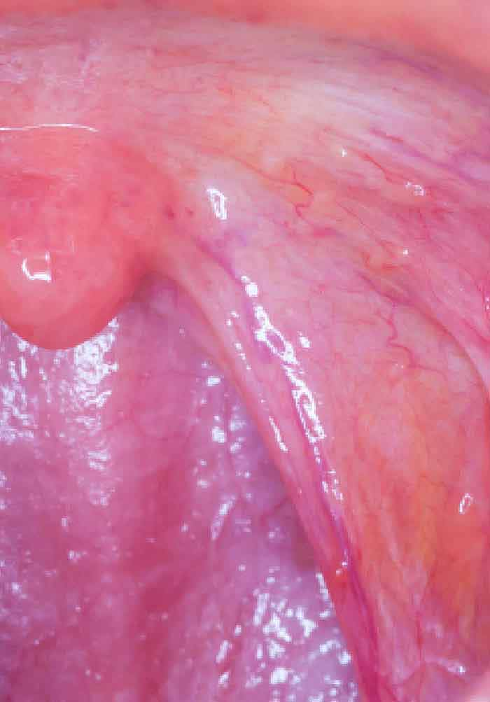 metastatic hpv throat cancer