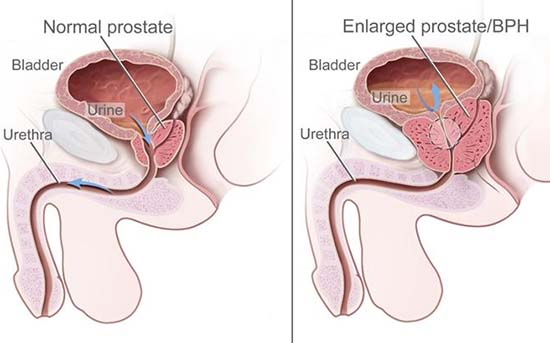 cancerul de prostata cauze