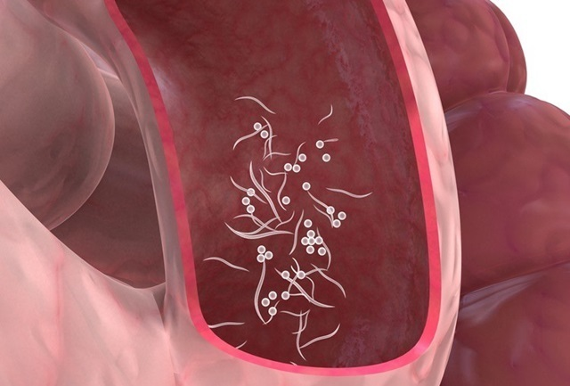 papanicolaou examen abnormal cervical cancer kills