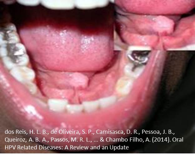 hpv mouth picture schistosomiasis united states