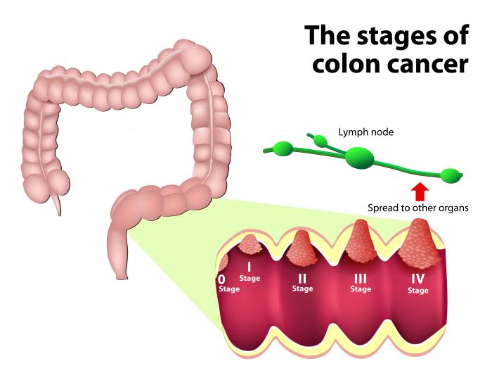 cancer colon pain squamous cell papilloma nhs