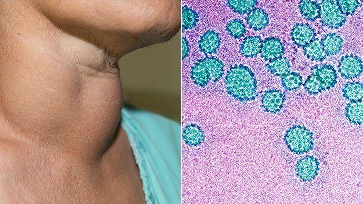 hpv oropharyngeal cancer transmission vindeca cancerul natural