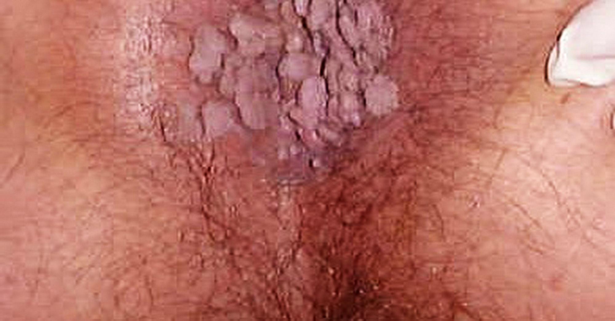 papilloma virus uomo prurito
