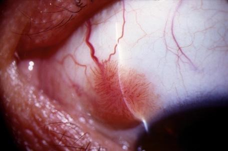 conjunctiva squamous papilloma
