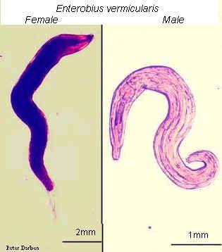 enterobius vermicularis anemia wart on foot thumb