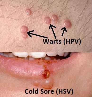 hpv from herpes homeopathy treatment for papilloma